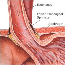 Lower Esophageal Sphincter